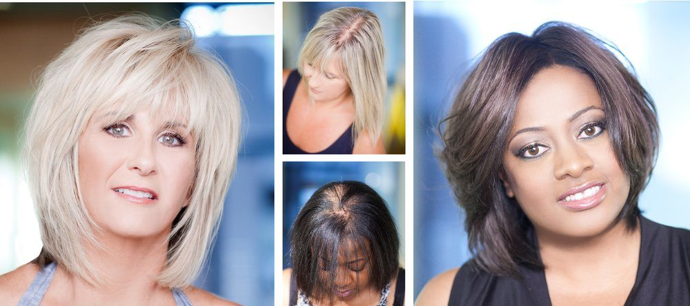 Thinning Hair in Dallas | Evolve Volumizer