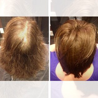 Hair Replacement Services in Dallas